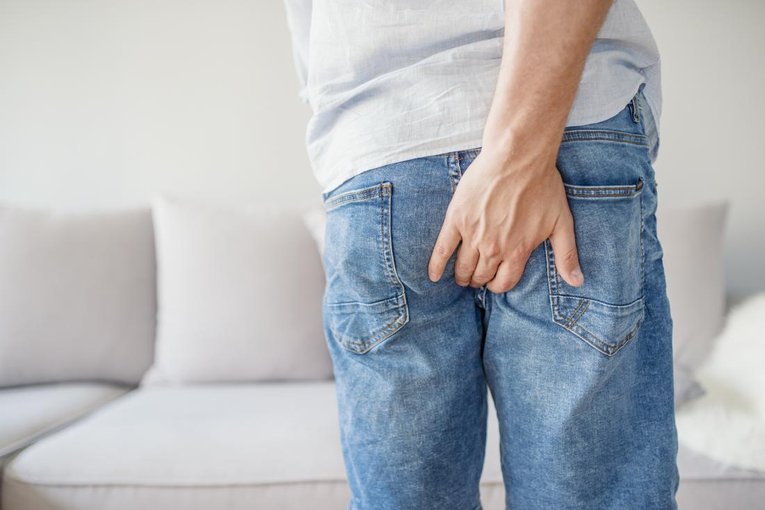Bệnh trĩ ngoại thường do táo bón lâu ngày
