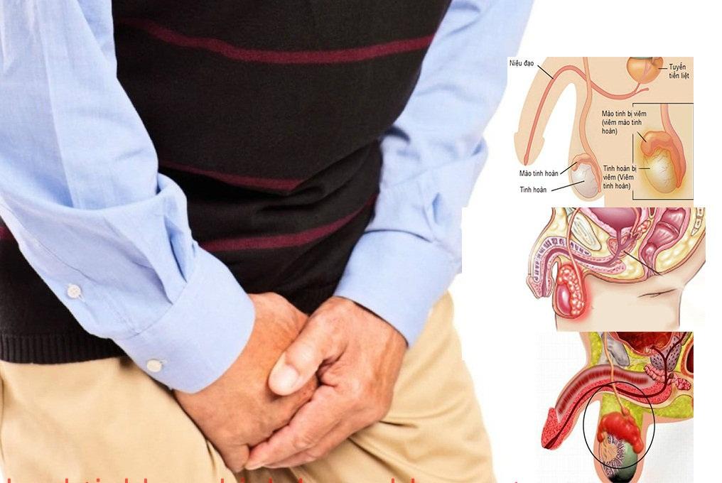 Viêm mào tinh hoàn có thể gây đau đớn