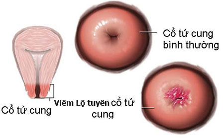 Hình ảnh viêm lộ tuyến cổ tử cung