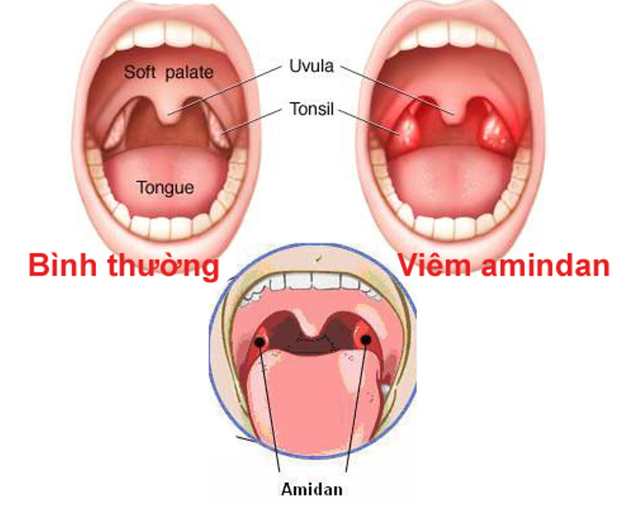 Đau họng khó nuốt nước bọt do viêm amidan