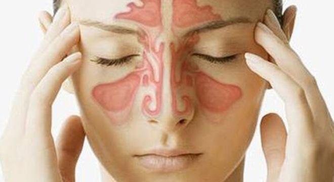 Đau họng khó nuốt nước bọt do viêm xoang mũi