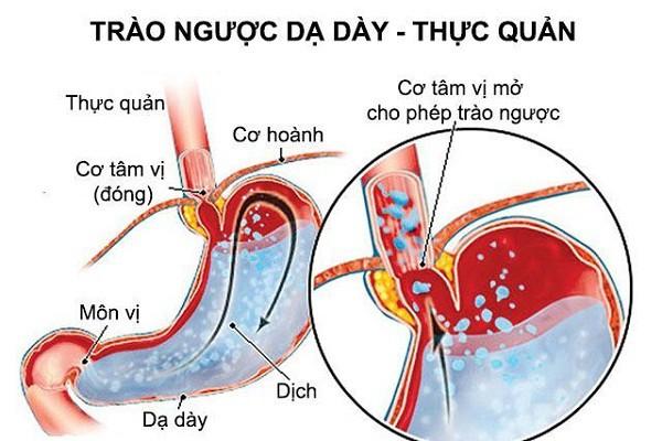 Đau họng khó nuốt nước bọt do trào ngược dạ dày thực quản