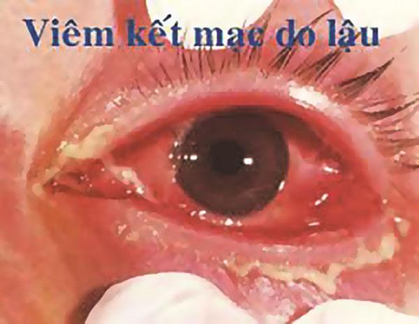 Bệnh lậu mắt có thể gây viêm mắt, lâu dần có thể dẫn tới mù lòa