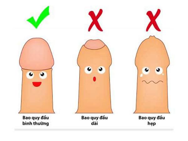 Hẹp bao quy đầu là gì?