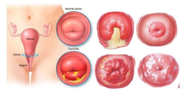 Triệu chứng viêm lộ tuyến cổ tử cung.