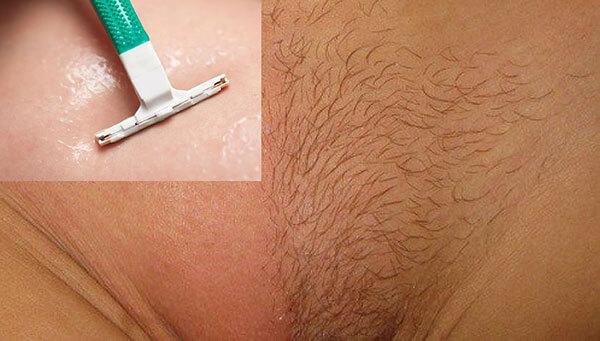 Tác dụng của lông mu đối với sức khỏe của nam và nữ giới