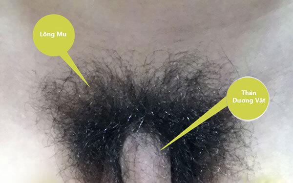 Một số hình ảnh lông mu ở nam giới