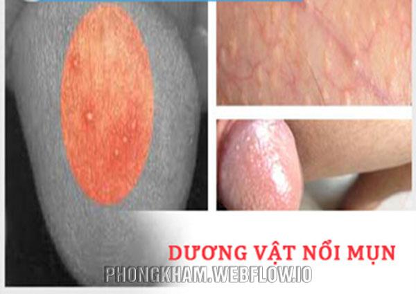 Bao quy đầu nổi mụn trắng, đỏ nguyên nhân cách xử lý