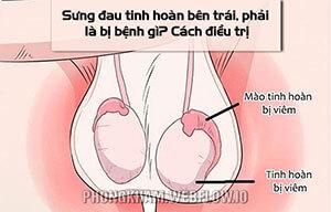Sưng đau tinh hoàn bên trái, phải là bị bệnh gì? 7 Cách điều trị hiệu quả