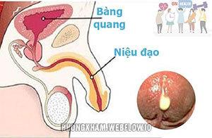 Chảy mủ ở bộ phận sinh dục nam là bị bệnh gì? (4 nguyên nhân thường gặp)