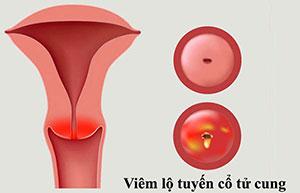 Viêm lộ tuyến cổ tử cung: Nguyên nhân, triệu chứng, 4 cách trị hiệu quả nhất