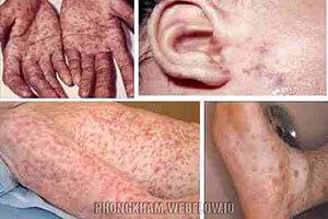 Hình ảnh bệnh giang mai ở nữ, nam chi tiết cụ thể nhất
