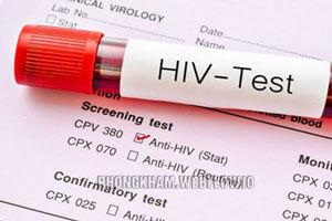 Dấu hiệu HIV, xét nghiệm HIV ở đâu tốt và an toàn Tại Hà Nội