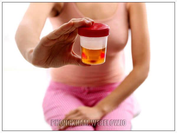 Các bệnh viêm nhiễm phụ khoa ở nữ giới gây tiểu buốt, tiểu ra máu