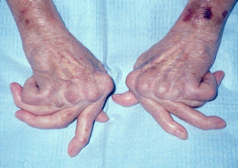 Viêm khớp dạng thấp làm tăng nguy cơ mắc bệnh zona