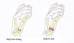 Viêm khớp ngón tay và cách điều trị