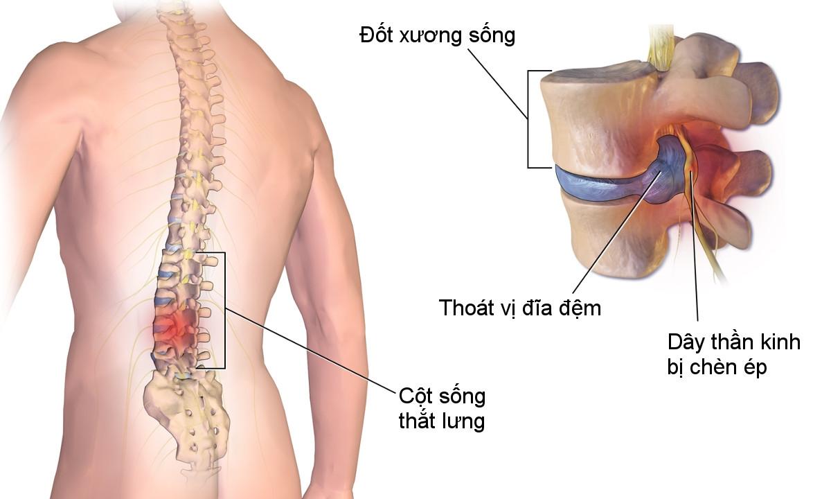 Cách điều trị bệnh thoát vị đĩa đệm cột sống thắt lưng
