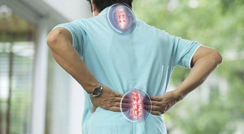 Bệnh nhân bị vôi hóa cột sống