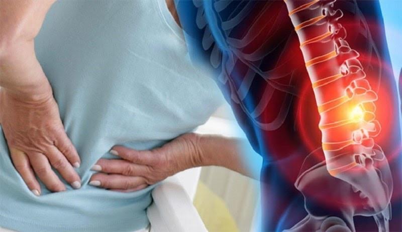 Đau nhức là biểu hiện thường thấy nhất khi mắc vôi hóa cột sống