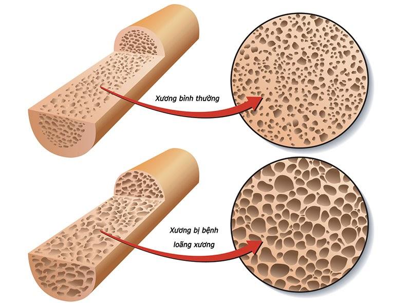 Bệnh loãng xương tương đối nguy hiểm và có thể gặp nhiều biến chứng khác