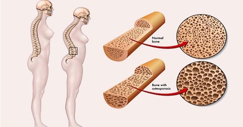 Bệnh loãng xương là gì? Có nguy hiểm không và cách điều trị hiệu quả