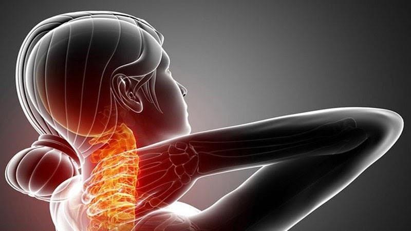 Gai cột sống, vôi hóa, thoái hóa đốt sống cũng là nguyên nhân gây đau vai gáy