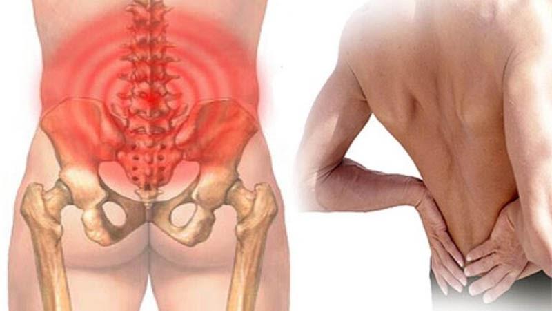 Hội chứng thắt lưng hông là gì? Nguyên nhân, chẩn đoán & Điều trị