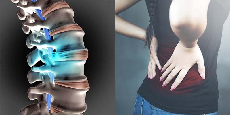 Phồng đĩa đệm là gì? Hình ảnh, triệu chứng và cách trị tận gốc