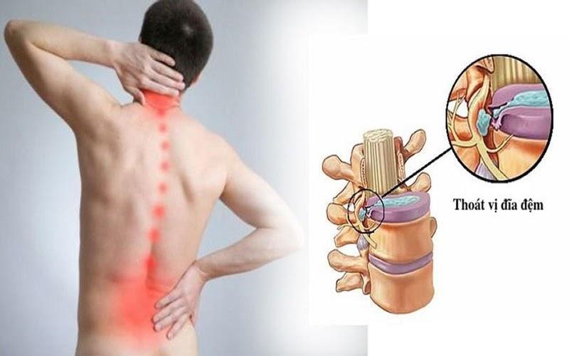 Thoát vị đĩa đệm là căn bệnh xương khớp khá phổ biến tại nước ta