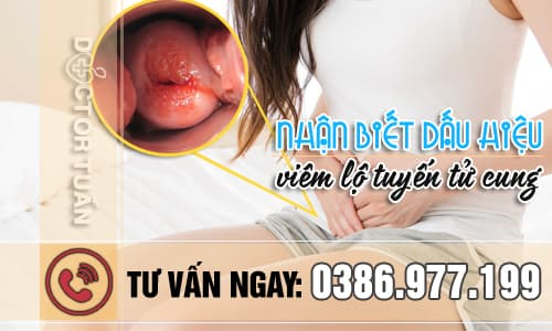 Nhận biết dấu hiệu viêm lộ tuyến tử cung