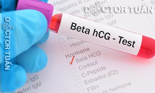 Nồng độ hcG trong máu giảm