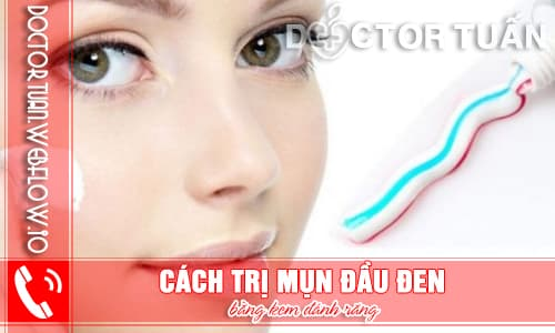 7 Cách trị mụn đầu đen bằng kem đánh răng
