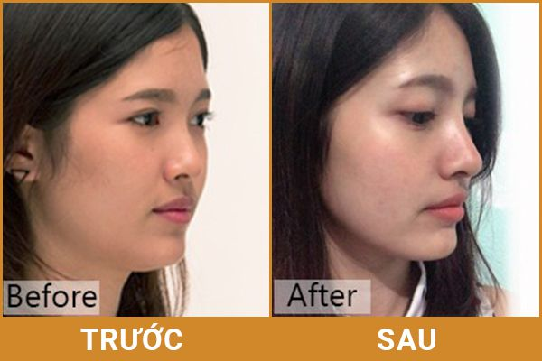 chăm sóc sau khi nâng mũi