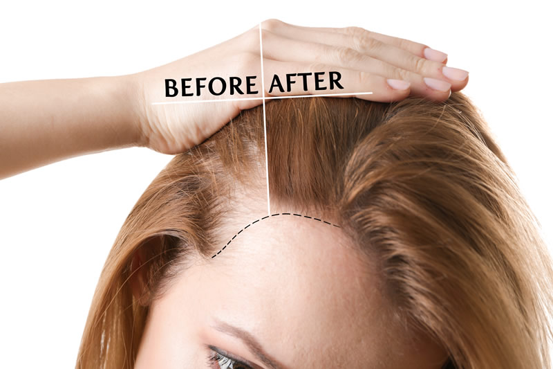 before and after Hair Restoration of female patient