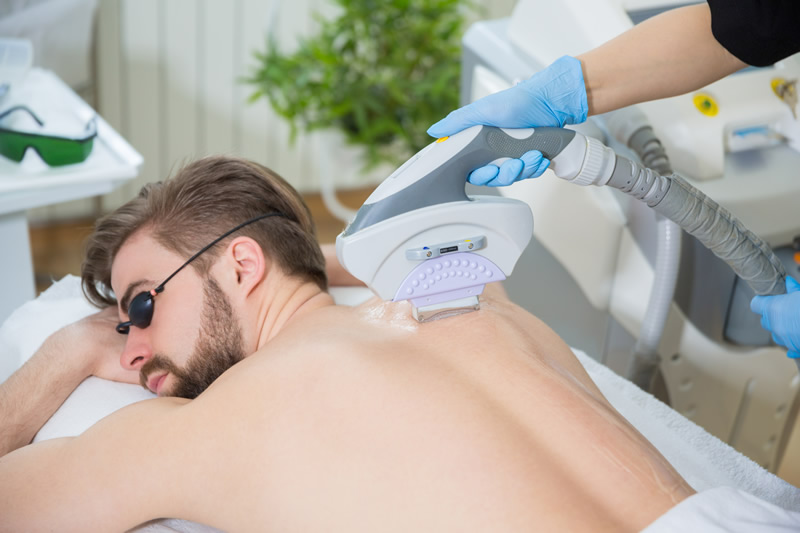 man getting back hair removed
