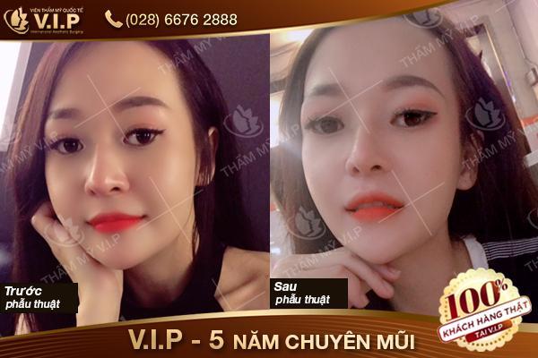khách hàng nâng mũi tại Nâng mũi VIP