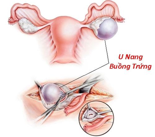 Cắt bỏ u nang buồng trứng