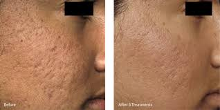 Before and after microneedling treatment