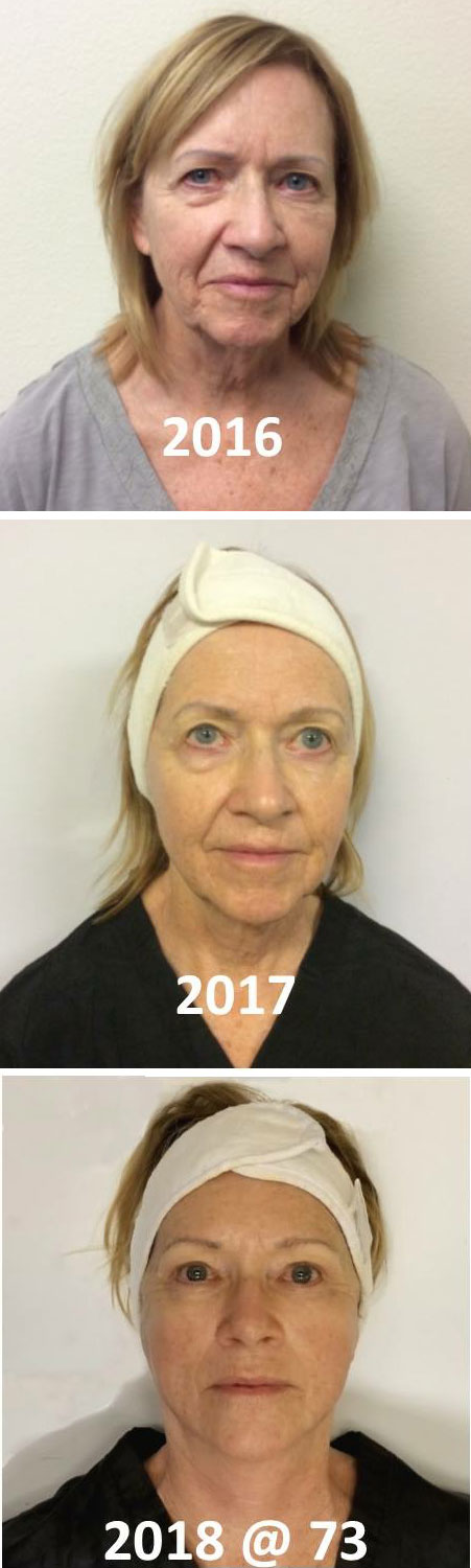 Before and after microcurrent facial sculpting treatments