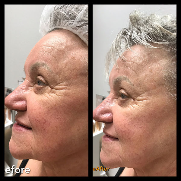 before and after microcurrent facial sculpting