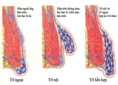 3 loại bệnh trĩ phổ biến
