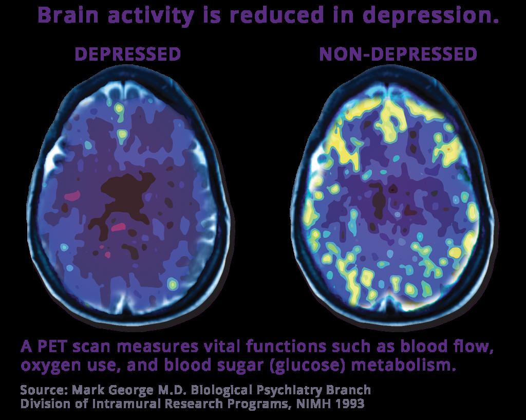 PET scan comparing depressed brain to non-depressed brain