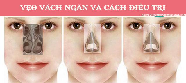 Vẹo vách ngăn mũi trái là gì