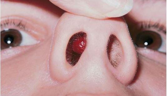 Polyp mũi có nguy hiểm không