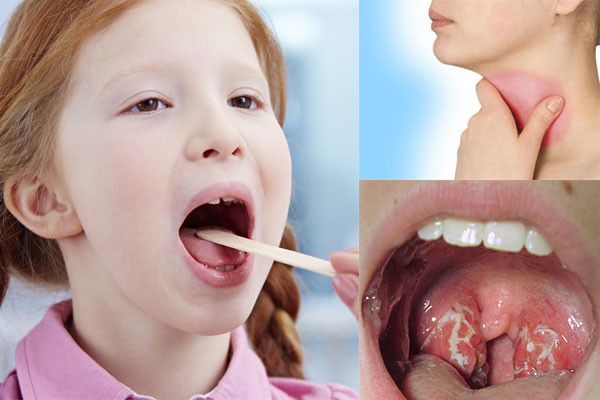 Sưng họng nuốt đau là bệnh gì