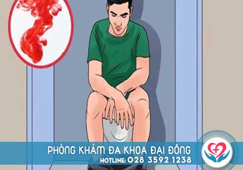 Đi cầu ra máu ở nam giới