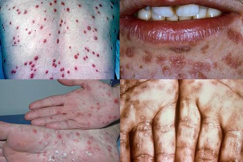 Bệnh hoa liễu là bệnh gì