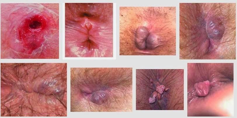 Itchy anus hemorrhoids, pantyhose travesti free vids