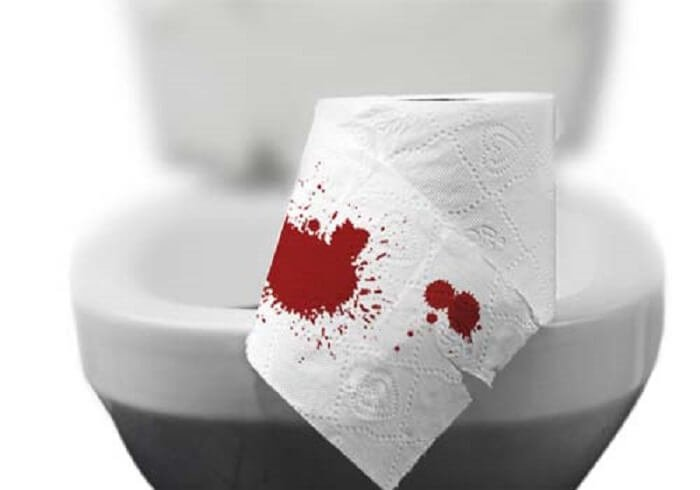 [ Giải Đáp ] Đi ỉa ra máu là hiện tượng của bệnh gì ?