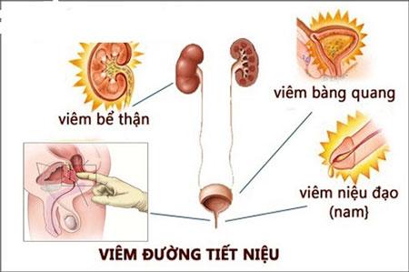 [ Tổng hợp ] 5 Dấu hiệu viêm đường tiết niệu ở nam giới và nữ giới